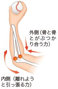 肘の内側には引っ張られる力(牽引力)、 肘の外側には骨と骨がぶつかる力(圧縮力)がかかり、野球肘の原因になる
