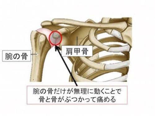 肩関節の構造と肩甲骨が動かない選手がなりやすい野球肩
