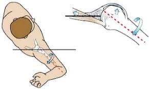テイクバックをとるときに腕は大きく後ろに引けます。  このときに肩甲骨を引き寄せることがができていれば問題ないのですが、腕だけを後ろに大きく引く動きになってしまうと肩の前側と後ろ側の両方に大きな負荷がかかってしまいます。  肩の前側は鍵板疎部損傷、肩の後ろ側ではインターナルインピンジメントなどの野球肩になりやすいので注意が必要です。
